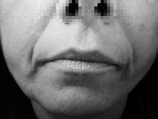 Captura Fils Tenseurs ovale visage