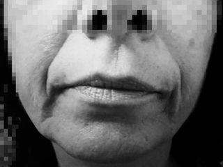 Fils Tenseurs ovale visage