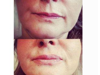 Augmentation des lèvres-625729