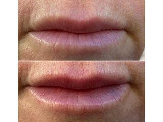 Augmentation des lèvres - Dr Pierre Laur