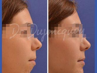 Chirurgie maxillo-faciale-661487