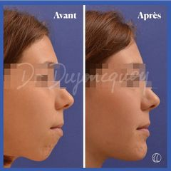 Dr Jean-Pascal Dujoncquoy - Chirurgie maxillo-faciale