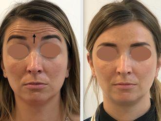 Botox - 795597