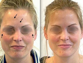 Botox - 795606
