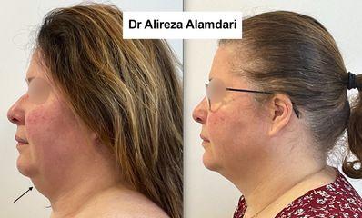 Liposuccion - Dr Alireza Alamdari