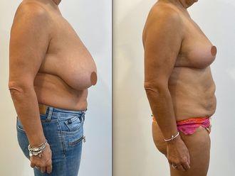 Réduction mammaire - 795613