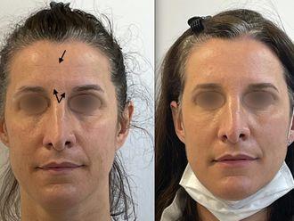 Botox - 795619