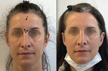 Botox - Dr Alireza Alamdari