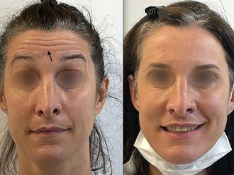 Botox - 795624
