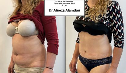Abdominoplastie - Dr Alireza Alamdari