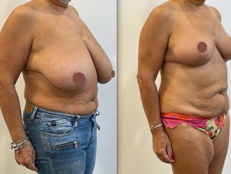 Réduction mammaire - 795628