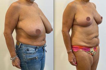 Réduction mammaire - Dr Alireza Alamdari