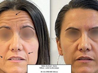 Botox - 795629