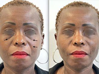 Botox - 795630