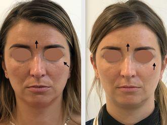 Botox - 795631