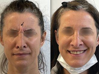 Botox - 795632