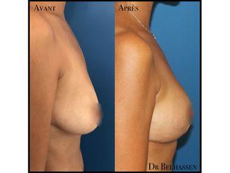 Chirurgie Esthétique-633127