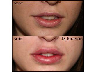 Augmentation des lèvres-633152