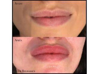 Augmentation des lèvres-633153