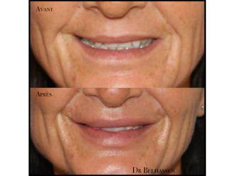 Augmentation des lèvres-633154