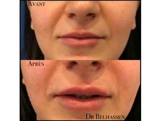 Augmentation des lèvres-633155