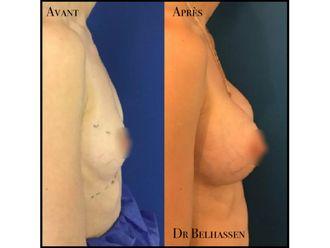 Augmentation mammaire-633176