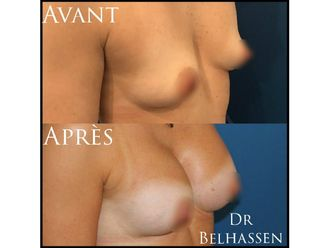 Augmentation mammaire-633179