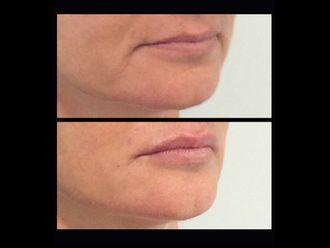 Augmentation des lèvres-609539