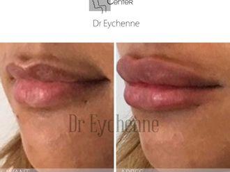 Augmentation des lèvres-650307