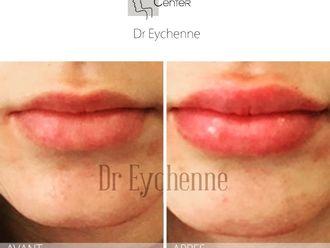 Augmentation des lèvres-650310