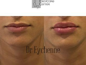 Augmentation des lèvres-742490