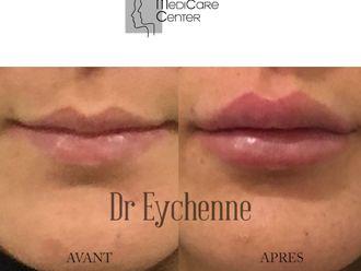 Augmentation des lèvres-742491