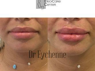 Augmentation des lèvres-742492