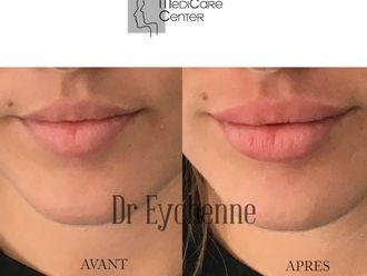 Augmentation des lèvres-742499