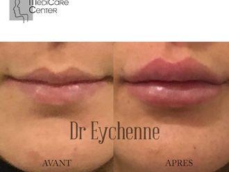 Augmentation des lèvres-742500
