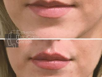 Augmentation des lèvres-790445