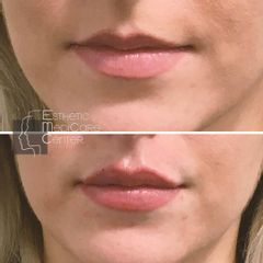 Augmentation des lèvres - Dr Catherine Eychenne