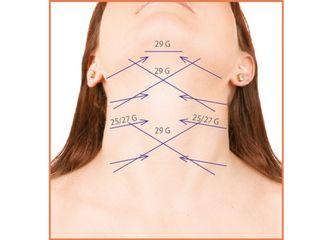 Schémas d'implantation des fils de remaillage sur l'ovale du cou