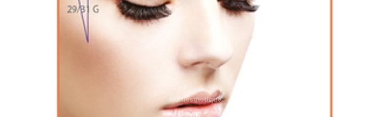 Schémas d'implantation des fils de remaillage sur le visage