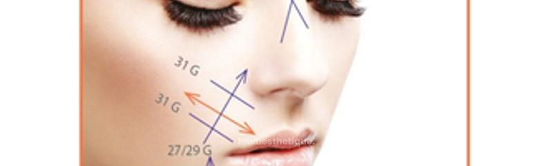 Schémas d'implantation des fils de remaillage sur l'ovale du visage