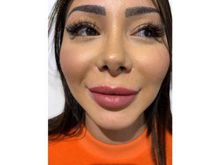 Injection des lèvres à l'acide hyaluronique