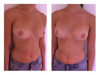 Augmentation mammaire-642331