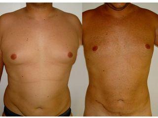 Liposuccion ventre et seins