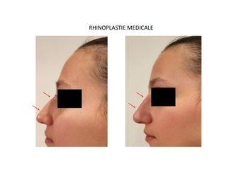 Rhinoplastie médicale - 740029