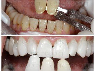Odontologie-785781