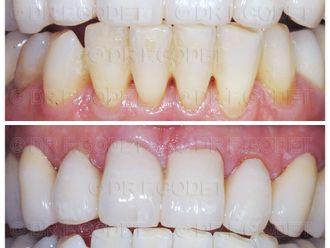 Blanchiment des dents - 785782