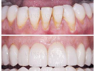Blanchiment des dents - 785784
