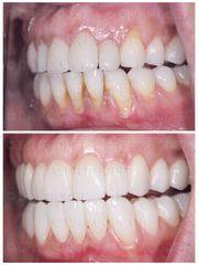 Blanchiment des dents - Dr François Godet