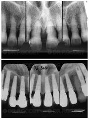 Implants dentaires - Dr François Godet