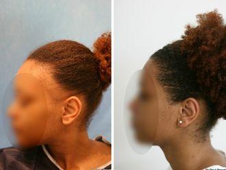 Greffe de cheveux-633864